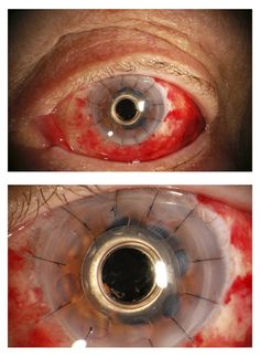 Image of an eye with a plastic cornea. The kind of cool thing about this is that my aunt works as an opthamologist and the eyes look sort of robotic.