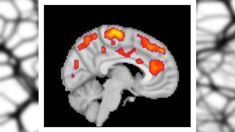 Finding neurochemical changes in the brains of people with fibromyalgia should help reduce the stigma that they face.