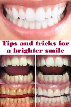 Tips and tricks for a brighter smile