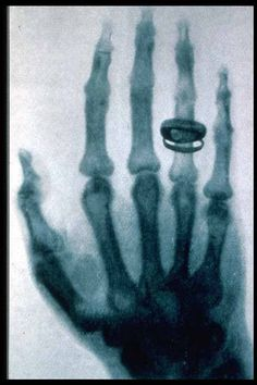 The very first Xray
