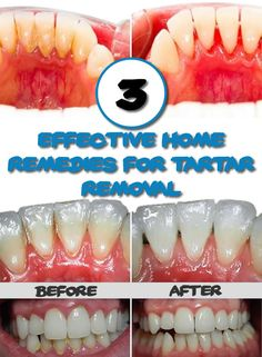 "The most effective methods to remove plaque. You do not need the dentist again. The tartar is the result of excessive accumulation of bacteria in the mouth, untreated, can cause gingivitis and periodontitis. Try these home remedies and say ""goodbye"" bacterial plaque (tartar). These remedies are the ideal solution for people who hate going to"
