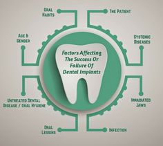 Factors of #DentalImplants Success or Failure. www.dental-clinic-india.com
