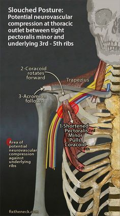 Overcoming Chronic Neck Pain: Postural Causes and A Unique Exercise Fix Eliminate risk of thoracic outlet syndrome Cardio Yoga, Pilates, Muscle Anatomy, Massage Techniques, Physical Therapist, Anatomy And Physiology, Pain Management, Neck Pain, Rib Pain