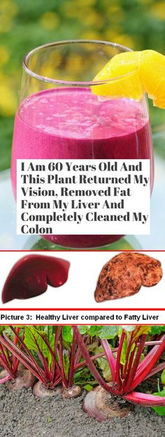 I am 60 Years Old & This Plant Returned My Vision, Removed Fat From My Liver & Completely Cleaned My Colon! - Living For Healthy Life Style Herbal Remedies, Health Remedies, Home Remedies, Natural Remedies, Liver Detox Cleanse, Natural Colon Cleanse, Healthy Liver, Healthy Tips, Home Beauty Tips