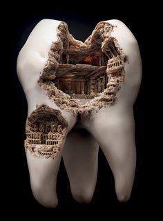 temple in a tooth