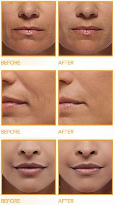 Get Rid of Deep Wrinkles Around the Mouth