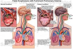 """Fatal Anaphylaxis with Fulminant Pulmonary Edema"" Medical Exhibit, Human Anatomy Drawing, Anatomy Illustration Pulmonary Edema, Human Anatomy Drawing, Allergies, Conditioner, Medical, Drawings, Notes, Health, Medical Doctor"