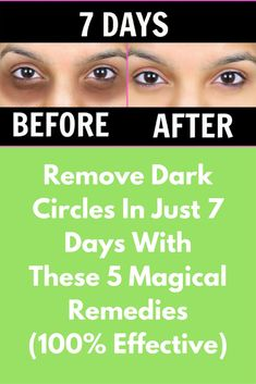 Remove Dark Circles In Just 7 Days With These 5 Magical Remedies (100% Effective) Many people suffer from dark circles under the eyes. They are embarrassing and make you look older than you are.Some of the common causes of dark circles are Heredity, Sleep deprivation, Oversleeping, Stress, Eczema, Skin pigmentation abnormalities, Fluid retention, Excess salt in the diet and Lifestyle among other reasons. Here are 6 remedies that will … #DarkCirclesRemedyDIY