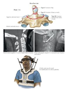 CLINICAL PROBLEMS AND CORRELATIONS OF CRANIOVERTEBRAL JUNCTION DENS FRACTURES Among pathologic entities at the craniocervical junction... Types Of Fractures, Fracture Healing, Spinal Canal, Musculoskeletal System, Magnetic Resonance Imaging, Mortality Rate