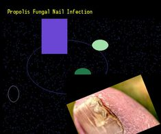 Propolis fungal nail infection - Nail Fungus Remedy. You have nothing to lose! Visit Site Now