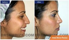 nostril reduction - Google Search