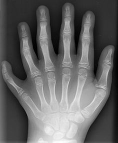 Polydactyly is the anatomical abnormality of having more than the usual number of digits on the hands orfeet. It is a congenital abnormality, usually geneticallyinherited as an autosomal dominant trait. There are several varieties of polydactyly; this X-ray photographshows a left hand with middle ray duplication.