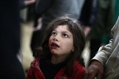 An injured Syrian girl is treated at a makeshift clinic following air strikes by regime forces in the rebel-held area of Douma, north-east of the capital Damascus