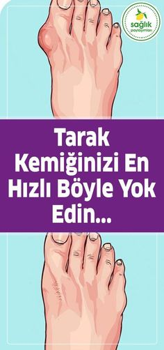 How does the bone protrusion (bunion) pass next to the thumb . - Pratik Hızlı ve Kolay Yemek Tarifleri Health And Beauty, Health And Wellness, Health Fitness, Fitness Women, Healthy Eating Guidelines, Healthy Tips, Natural Health Remedies, Herbal Remedies, Fit Women Bodies