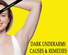 Dark Underarms Causes and Natural Remedies