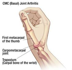 The basal joint, also known as the thumb carpometacarpal (CMC) joint, is located at the base of the thumb, and connects the thumb to the wrist. Description from learnbones.com. I searched for this on bing.com/images
