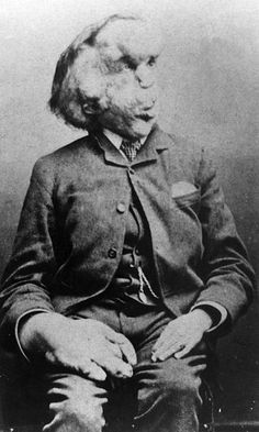 The Elephant Man, Joseph Merrick. born was totally normal till the age of the physical deformity initially manifested as small bumps on the right side of his body by age his mother passed away and Joseph Merrick's deformities became severe. Joseph Merrick, John Merrick, Elephant Man, Sideshow Freaks, Human Oddities, Fable, Man Images, Foto Art, Once Upon A Time