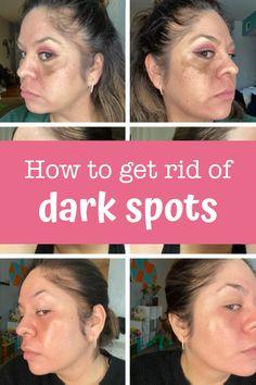 Diy Beauty Face, Beauty Skin, Dark Spots On Skin, Facial Care, Health And Beauty Tips, Skin Treatments, Skin Makeup, Beauty Secrets, Skin Care
