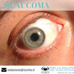 👉 Occhio.it Web Magazine di Oculistica  ▪ Italy  GLAUCOMA  http://occhio.it/glaucoma-la-mini-guida-completa  👀👀 Il glaucoma è una malattia che colpisce il nervo ottico, fascio di fibre nervose che trasmette gli impulsi elettrici derivati da stimoli visivi al cervello ed è causato da un continuo aumento della pressioneIl glaucoma è una malattia che colpisce il nervo ottico, fascio di fibre nervose che trasmette gli impulsi intraoculare.  #glaucoma #eye #occhio #eyes #eyesight #vision…