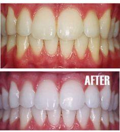 Sarı dişler, özellikle aşırı miktarda şeker, çay, kahve ya da sigara tüketenlerde sık görülen bir sorundur. Eh buna bir de düzensiz diş fırçalama eklenirse sonuç daha da kötü oluyor. Sarı dişten muzdarip kişiler en çok sigara içenler, gülümsemelerini engelliyor ve dişlerinden utanmasına neden oluyor. İyi haber ise, bu sorunun kolayca çözülebileceğidir. Dahası, kimyasal yüklü pahalı …