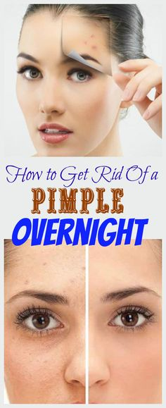 Get rid of a pimple overnight. Try these home remedies and see the results.