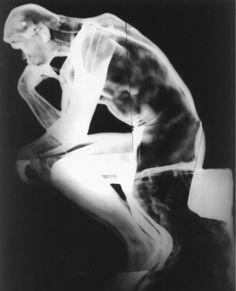 Radiografía que revela un contrapeso de plomo en la base de EL PENSADOR y armaduras de hierro en la escultura.