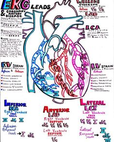 EKG and the coronary arteries.you'll find the perfect cardiology study guide if you combine all my EKG notes! Look in my archived posts to put it all together! Nursing School Notes, Medical School, Nursing Schools, Nursing Career, Ekg Leads, Cath Lab Nurse, Ed Nurse, Nurse Life, Cardiac Nursing