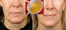 Beauty Care, Beauty Hacks, Homemade Face Masks, Uneven Skin, Wrinkle Remover, Natural Face, Beauty Recipe, Face Skin, Health And Beauty