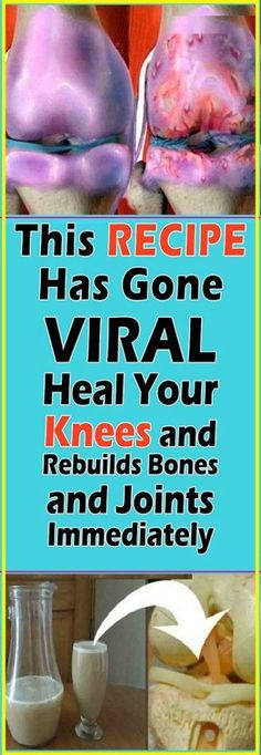 Joint Pain Remedies This Remedy Has Gone Viral! Heal your Knees and Rebuilds Bones and Joints Instantly Natural Cure For Arthritis, Types Of Arthritis, Natural Cures, Natural Health, Arthritis Hands, Knee Arthritis, Arthritis Society, Rheumatoid Arthritis Diet, Arthritis Remedies