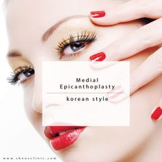 Medial Epicanthoplasty is a procedure that aims to rearrange tissue in the inner eyelid area to decrease the epicanthal fold without much tension. Dr Shens practices this procedure in Korean method as it is done with the Asian Double Eyelid Crease Procedure.  Call us at +65 96416744 now. We are available in Whatsapp too, add us! #shensclinic#koreantechnique#plasticsurgerysingapore#doubleeyelid#nonincision#scarless#uppereyelidcrease#Blepharoplasty#epicanthoplasty#drshens