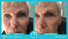 Tighten up what tells your age. Instantly ageless can help clear away eye bags, wrinkles, and other visible signs of aging. Ask me to try it! https://multibra.in/6wqtg