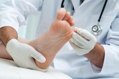 Make the best health decisions by reading 9 Things to Know About Athlete's Foot at Healthgrades, America's leading resource for finding Healthcare providers. Toenail Fungus Cure, Toe Fungus, Toenail Fungus Treatment, Diabetes Treatment, Candida Symptoms, Fungal Nail Infection, Top 10 Home Remedies, Eyes, Natural Cosmetics
