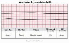 ECG Interpretation - 48 Ventricular Asystole
