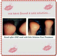 Sole Solution is amazing for healing cracked heels and cracked cuticles! Epoch Sole Solution, Heal Cracked Heels, Red Skin, Natural Line, Foot Cream, Best Foundation, Skin Products, Anti Aging Skin Care
