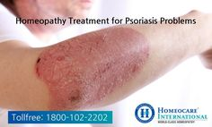 Psoriasis is a chronic skin disease. Homeocare International offers constitutional homeopathy treatment for Psoriasis, which not only aims at relieving the symptoms, but treats the root cause to control psoriasis. Inverse Psoriasis, What Is Psoriasis, Psoriasis Symptoms, Psoriasis Remedies, Scalp Psoriasis Shampoo, Psoriasis Skin, Autoimmune Disease, Diet