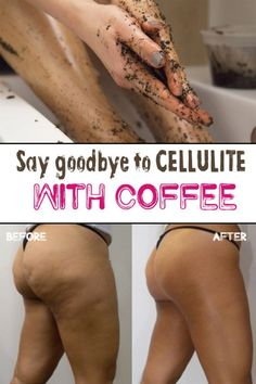 Most of women dream of a stunning skin, without imperfections and most important of all: without facing the eternal problem of cellulite. Unfortunately, cellulite is a skin condition with underlyin… Cellulite Exercises, Cellulite Remedies, Beauty Skin, Health And Beauty, Beauty Boost, Orange Peel Skin, Coffee Cellulite Scrub, Coffee Scrub, Reduce Cellulite