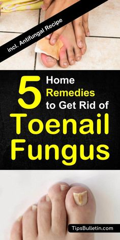 Natural Holistic Remedies How To Get Rid of Toenail Fungus - 5 Home Remedies includes pictures and tips about remedies to cure toenail fungus fast. an apple cider vinegar antifungal recipe. Toe Fungus Remedies, Toenail Fungus Remedies, Toenail Fungus Treatment, Treating Toenail Fungus, Holistic Remedies, Natural Home Remedies, Health Remedies, Natural Healing, Diabetes Remedies