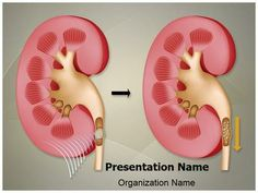 Kidney powerpoint template download kidney powerpoint templates make a great looking ppt presentation quickly and affordably with our professional nephrolithiasis kidney stones powerpoint template toneelgroepblik Choice Image