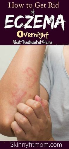 Do you want to get rid of eczema permanently? Then, here are home remedies for eczema.There home treatment will help you cure eczema on the face, hand or legs naturally. Eczema On Hands, Get Rid Of Eczema, Home Remedies For Eczema, Natural Home Remedies, Snoring Remedies, Natural Cures For Eczema, Psoriasis Remedies, Natural Excema Remedies, Beauty