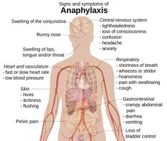 anaphylactic shock symptoms pictures -Signs_and_symptoms_of_anaphylaxis Mast Cell Activation Syndrome, Nursing Notes, School Nursing, Nursing Career, Med School, Shortness Of Breath, Central Nervous System, Nursing, Exercises