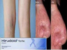 awesome 40g Hirudoid Forte Cream Removal Acne Scar Varicose Veins Bruises Keloid Edema - For Sale View more at http://shipperscentral.com/wp/product/40g-hirudoid-forte-cream-removal-acne-scar-varicose-veins-bruises-keloid-edema-for-sale/