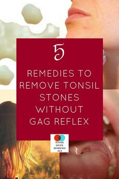 5 Home remedies that can easily remove tonsil stones without any gag reflex Tonsilitis Remedy, Tonsil Stone Removal, Home Remedies, Natural Remedies, How To Get Rid, How To Remove, Health Benefits, Health Tips, Gag Reflex