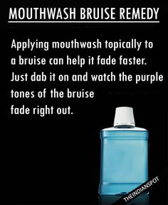 Get rid of bruises with mouthwash: