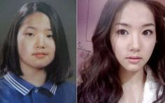 Park Min Young Plastic Surgery Before & After Park Min Young, Sara Sampaio, Skin Care Routine Steps, Skin Care Tips, Asian Makeup Before And After, Korean Plastic Surgery, Asian Makeup Looks, Plastic Surgery Procedures, Eyelid Surgery