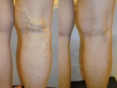 Rid of Varicose Veins with Tomatoes Learn how to get rid of varicose veins using tomatoes.Learn how to get rid of varicose veins using tomatoes. Varicose Veins Causes, Varicose Vein Remedy, Fitness Workouts, Getting Rid Of Headaches, Leg Pain, Insomnia, Health Remedies, Beauty Secrets, Health And Beauty