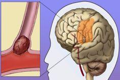 Trombose Cerebral : Tratamento, Sintomas e Sequelas