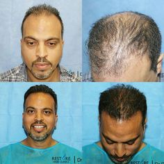 •Before and After•  A total of 2606 grafts and 6708 hairs was used in this hair restoration surgery.  We love to make our clients happy and confident! 😀  #hair #hairloss #hairrestoration #hairsurgery #cosmeticsurgery #beforeandafter #results #amazing #recedinghairline #confidence #harleystreet #london #follicularunitextraction #hairtransplant #hairlosstreatment #happyclient #fue #drraghureddy