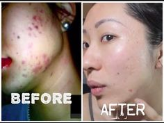 Get rid of acne scars today, naturally! Banish acne scars with natural and vegan skincare. Pick your skincare weapon & try Banish with a 30 day money back guarantee. Natural Acne Treatment, Natural Skin Care, Acne Treatments, Home Remedies For Acne, How To Get Rid Of Acne, How To Treat Acne, Acne Scars