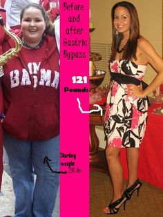 19 Best Weight Loss Surgery Before After Photos Images Bariatric