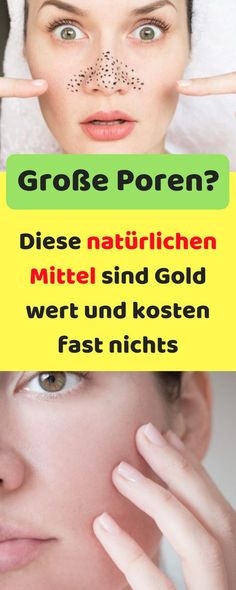 Finer pores: These natural remedies are worth gold and can be .- Feinere Poren: Diese natürlichen Mittel sind Gold wert und kosten fast nichts With these tricks you can refine your pores. Black Spots On Face, Brown Spots On Skin, Dark Spots, Face Care, Skin Care, Pimples Under The Skin, Home Remedies For Pimples, Skins Minecraft, Long Hair